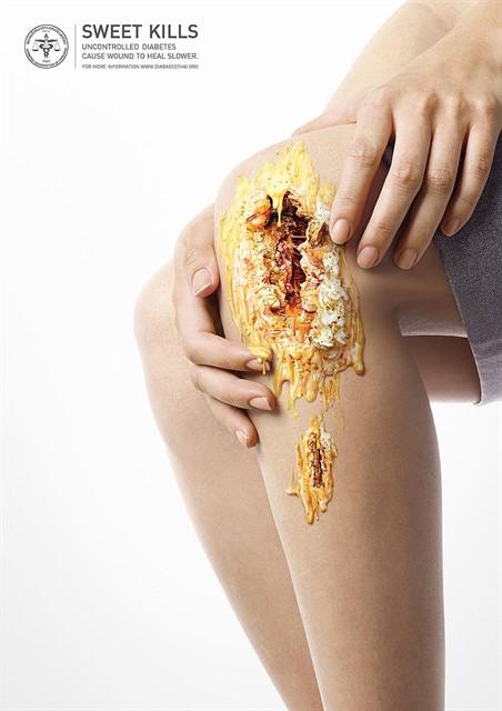 Шорирующие фото последствий диабета-3