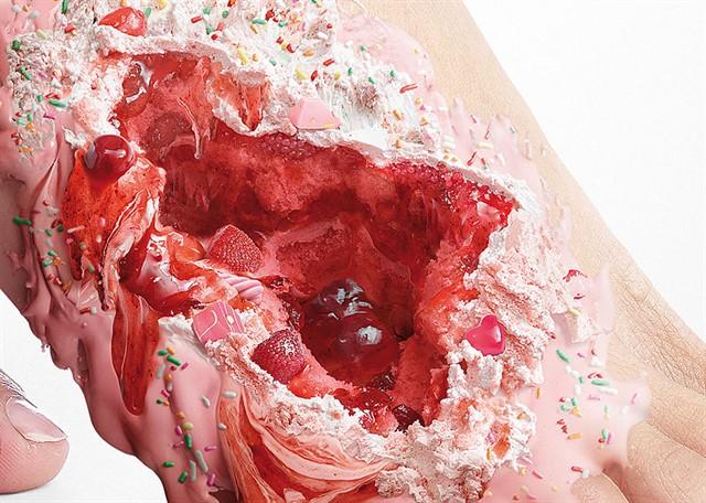 Шорирующие фото последствий диабета-6