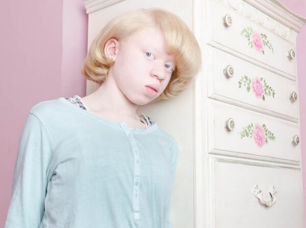 fotosessiya-s-uchastiem-lyudey-albinosov-7
