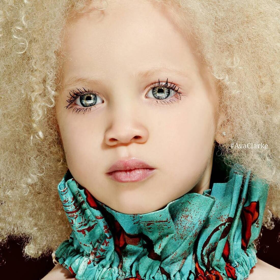 model-albinos-ava-clarke-1