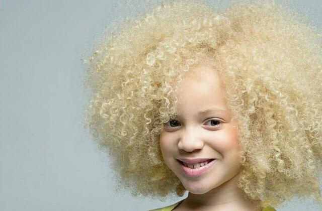model-albinos-ava-clarke-11