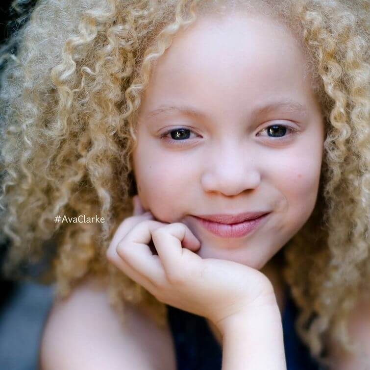 model-albinos-ava-clarke-8